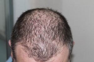 Hårtab behandling af tyndt hår
